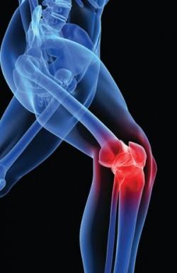 Knee.Pain  250x386 Knee.Pain