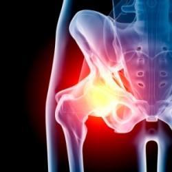 hip pain1 300x300 250x250 hip pain1 300x300